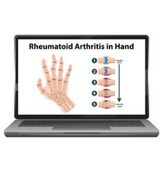 Rheumatoid arthritis symptoms on hand on laptop vector