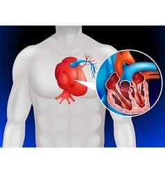 Heart disease diagram in detail vector