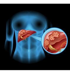 Liver Cancer diagram in detail vector