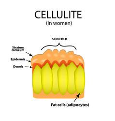 Skin aging in women cellulitis infographics vector