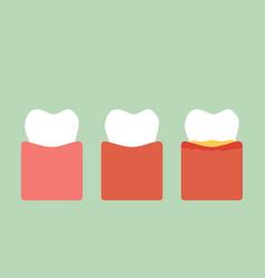 step of gum disease vector image