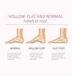 Foot deformation types medical desease vector