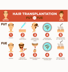 hair transplantation surgery cosmetic procedure vector image