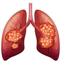 Lung cancer process in detail vector image vector image
