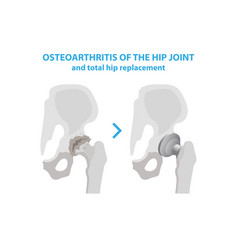 osteoarthritis of the hip joint and hip vector image