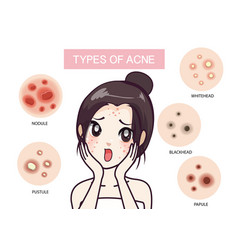 Type acne vector