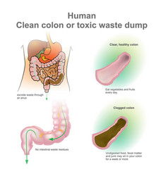 Man clogged colon healthy colon vector