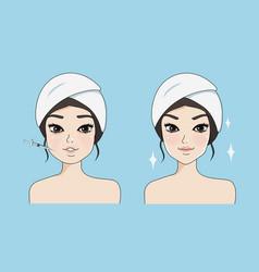 Botox girl vector