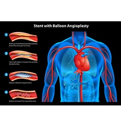 Stent with balloon angioplasty vector image