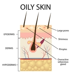 The layers of oily skin vector image