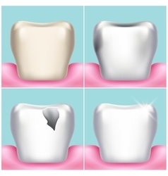 Dental problems caries plaque and gum disease vector image