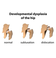 Dysplasia of the hip vector