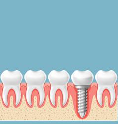 Row of teeth with dental implant - teeth vector