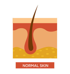 normal healthy skin structure with body hair vector image