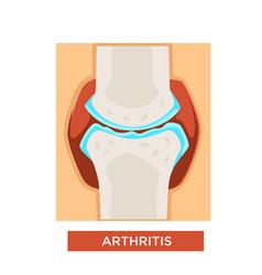 Arthritis bones or joint treatment rheumatology vector