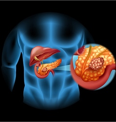 Pancreas cancer diagram in human body vector