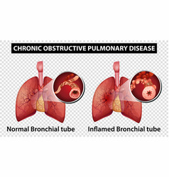 diagram showing chronic obstructive pulmonary vector image
