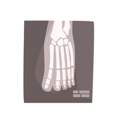 x ray image of human foot cartoon vector image