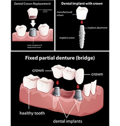 Dental procedures on black vector