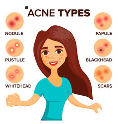 Acne types girl with acne skin care vector