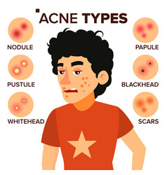 Acne types boy with acne pimples vector