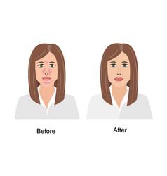 woman suffering from seborrheic dermatitis before vector image