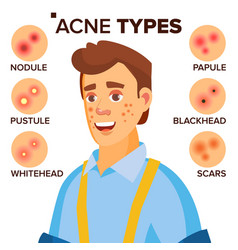 Acne types man with acne facial skin vector