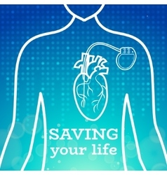 Heart pacemaker body vector image vector image