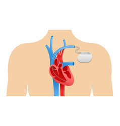 pacemaker anatomical scheme vector image