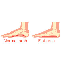 human anatomy flat and normal arch vector image
