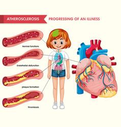 Scientific medical atherosclerosis vector