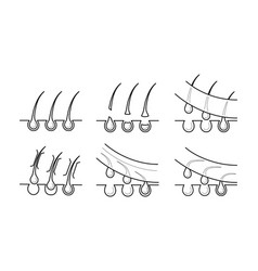 icons of hair removal methods vector image