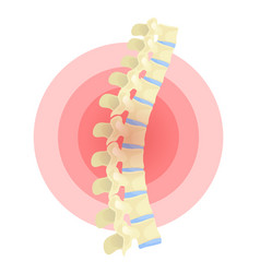 Spine deformation flat color isolated vector