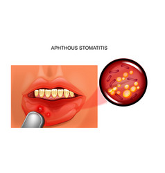 Aphthous stomatitis aphthae vector