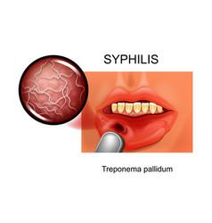syphilis chancre treponema pallidum vector image