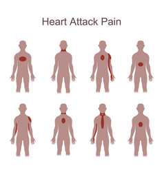 heart attack pain location vector image