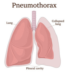 Pneumothorax vector