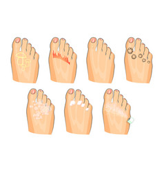 Various injuries of the feet fungus burning vector