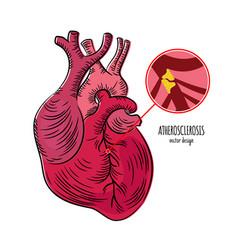 Atherosclerosis disease chronic illness medicine e vector