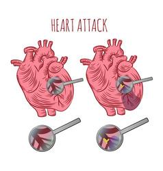 Heart attack atherosclerosis medicine education ve vector
