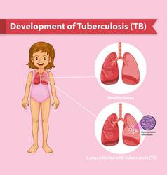Scientific medical tuberculosis tb vector