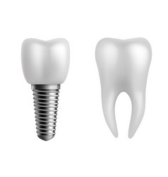 Dental implant and teeth realistic orthodontic vector