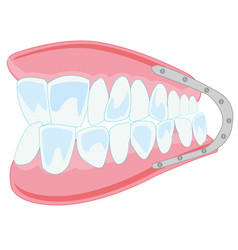 Denture on white background is insulated vector