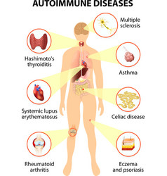 Tissues of the body affected by autoimmune attack vector image vector image