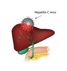 Hepatitis c the introduction of the hepatitis c vector