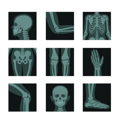 Skeleton and bones x-ray shots head and hands vector