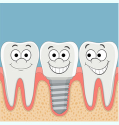 Human teeth and dental implant vector