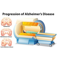 Progression of Alzheimers Disease vector