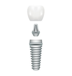Dental implant structure medical pictorial vector