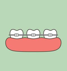 Orthodontic teeth or dental braces vector